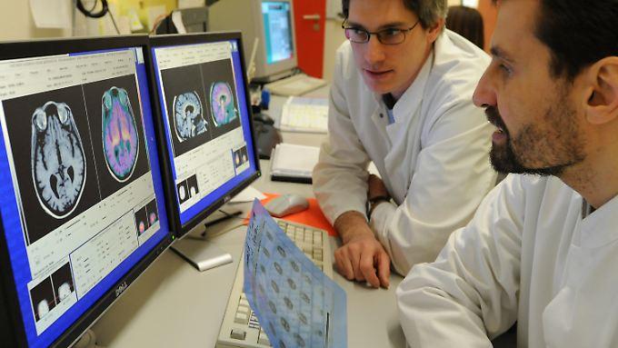 Veränderungen im Gehirn weisen auf eine Alzheimer-Erkrankung hin.