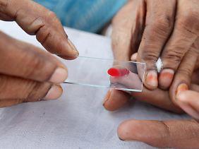 Mit einem Bluttest kann Dengue-Fieber eindeutig diagnostiziert werden.
