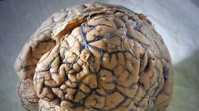 Folgen schwer abzuschätzen: Was ist ein Schädel-Hirn-Trauma?