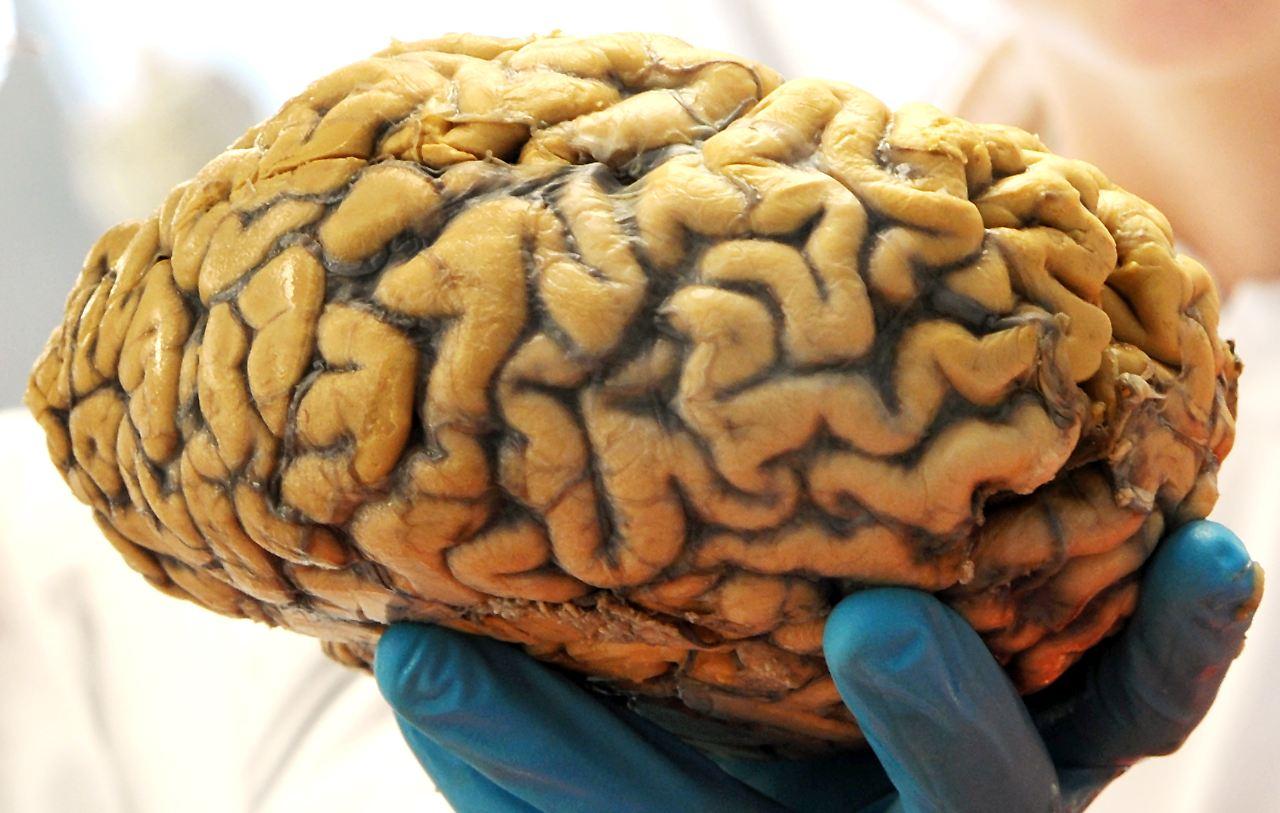 Wenn die Schaltzentrale reift: Alte Gehirne bleiben leistungsfähig ...