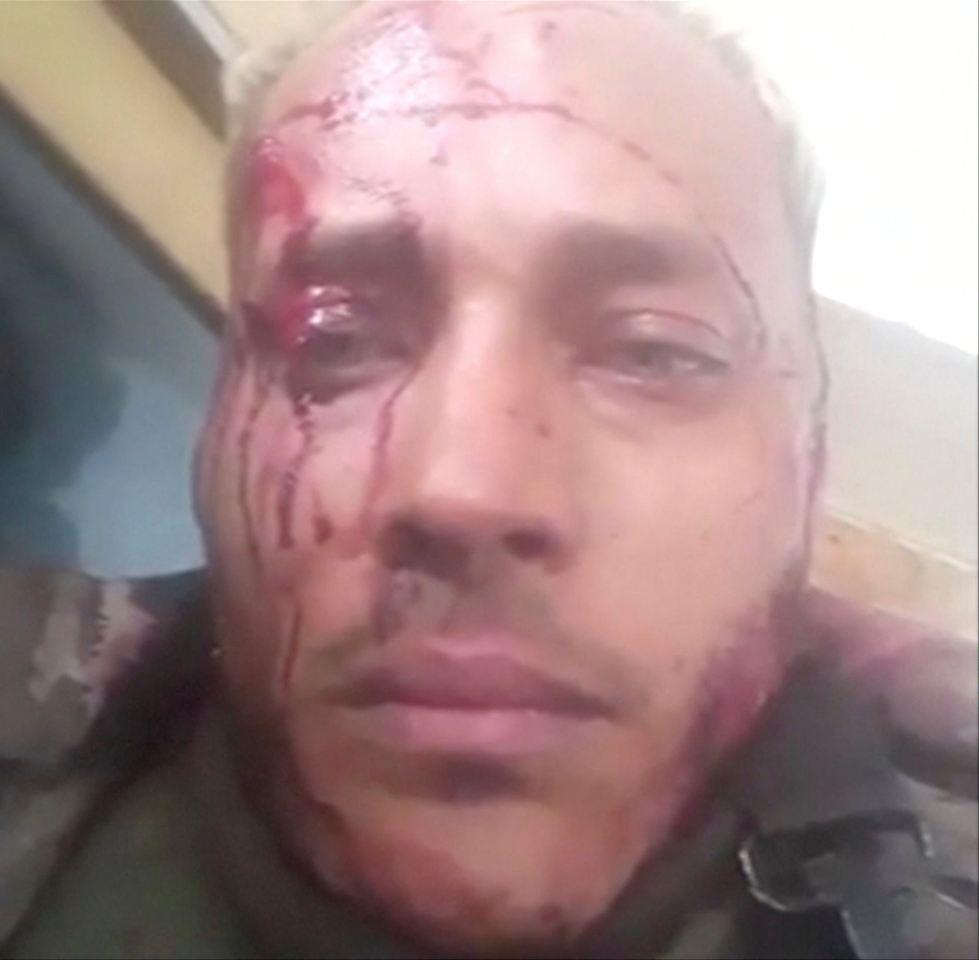 Feuergefechte in Venezuela: Tote und Verletzte bei Militär-Angriff gegen Aufständische